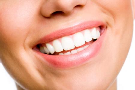 DENTÍSTICA (RESTAURAÇÕES) - Fronssard Rasseli Odontologia