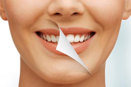ESTÉTICA - Fronssard Rasseli Odontologia