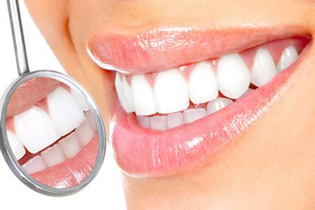 CLÍNICA GERAL E PREVENÇÃO - Fronssard Rasseli Odontologia