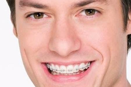 ORTODONTIA (APARELHOS ORTODÔNTICOS)  - Fronssard Rasseli Odontologia