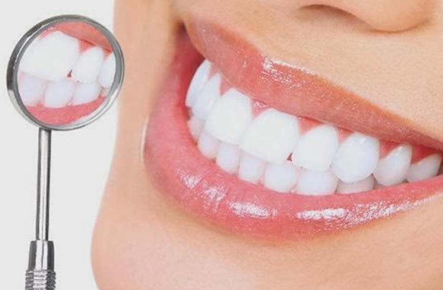 o-que-devemos-saber-sobre-o-escurecimento-dos-dentes